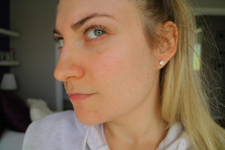 My Skin Journey